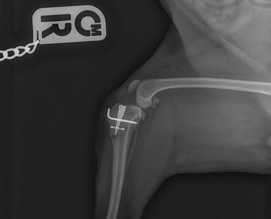 Mini Staple Radiograph